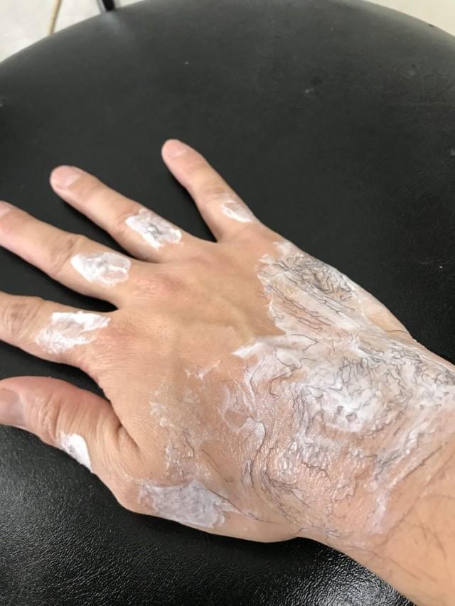 新メニューに、 脱毛 プチ脱毛 メニューを加えようかと!!自分の手で実験!! BeforeAfterは必見です!